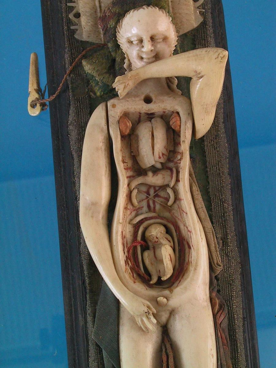 """Liggende kvinne, anatomisk studie. Elfenben, forskjellige stoffstykker, sokkel av sortmalt  tre.   Lang rektangulær sokkel med profilerte sider,  toppen dekket av grønn silke og kantet med  sølvbånd. På denne hviler en kvinnefigur med  lang 4 utrakte lemmer, hodet en face med  tilbakestrøket hår som henger ned i lokker langs  nakken, armene bevegelige, den ene hviler over h. lår og den annen bøyd inn mot brystet. Bryst og  mageparti kan løftes av ved å fjerne en tapp i  halsen. Innenfor ligger et foster, innvoller og  årer er markert, likeså årene på innsiden av det  løse deksel.  Hodet hviler mot et sammenbrettet stykke stoff  Med lynåldbroderi (point d""""Hongrie,florentinsk  sying), under denne igjen en pute av elfenben  med skravert ytre felt og hullet og tunget bord.  Under korsryggen sees litt av et lyst beige  silkestoff. under v. låret sammenbrettet  silkestoff i grått,rødt og gult,  mellom benene et brokadestoff i hvitt og rødt, og  langs h. ben et opprinnelig blått, nå falmet silke  stoff med mønster i lyskrønt og sort nederst."""